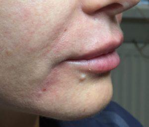 Контурная пластика рта
