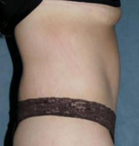 абдоминопластика показания к проведению операции